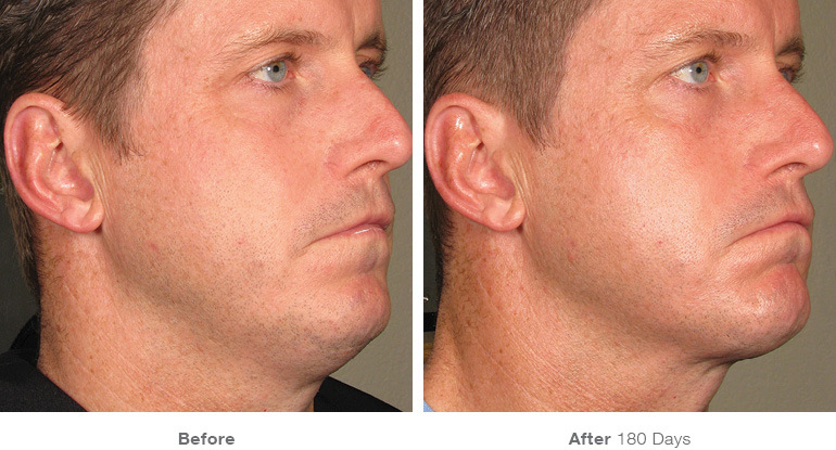 Ultherapy before and after